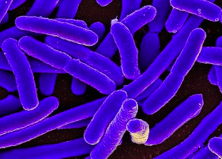 96 People Fall Ill Due To E Coli Outbreak